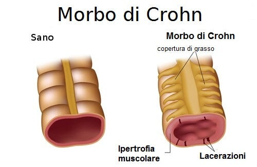 Morbo di Crohn: quali sono i sintomi e le terapie