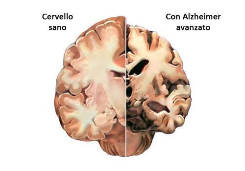 Malattia di Alzheimer: diagnosticare i primi sintomi