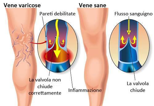 le vene varicose sono dovute a una cattiva circolazione sanguigna