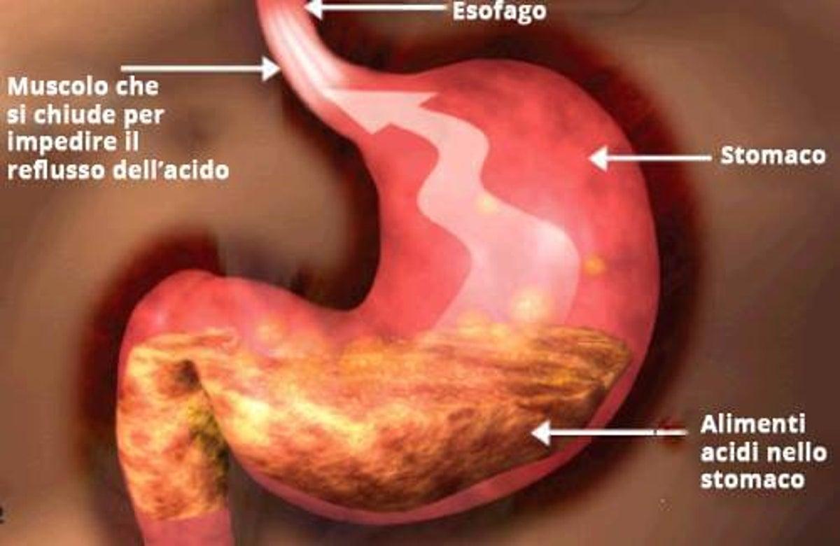 dieta settimanale per gastrite e reflusso