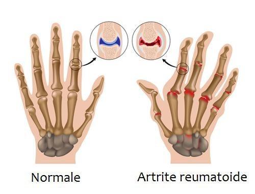 Combattere i sintomi dell'artrite