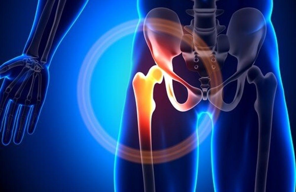 Types: osteoporosi