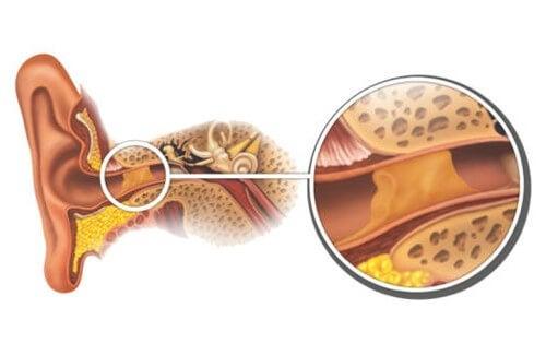 Tappi di cerume: come rimuoverli in modo naturale