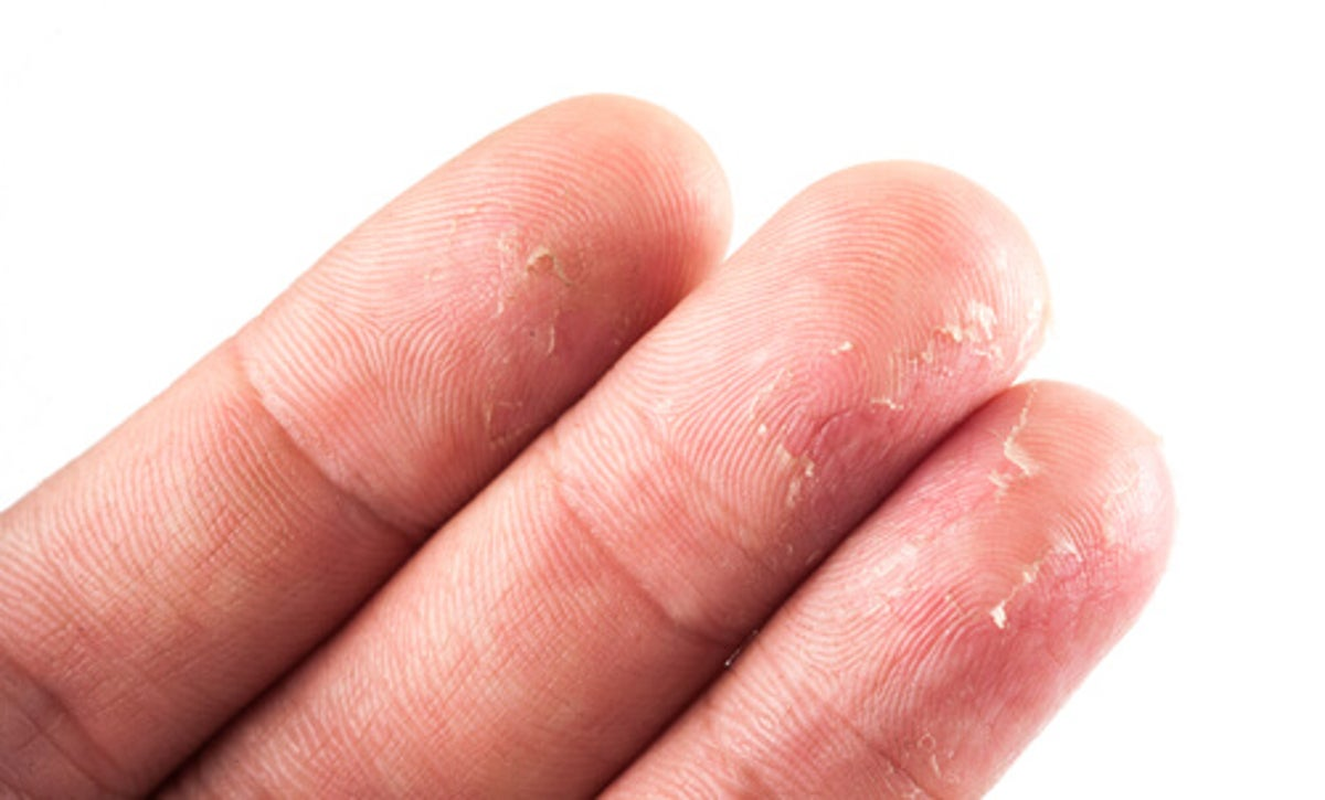 Candeggina Sulla Pelle Rimedi eliminare un eczema in modo naturale: come fare? - vivere