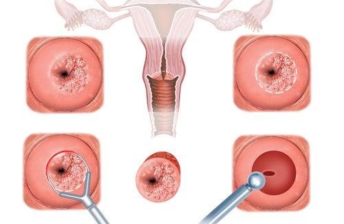 Sintomi e trattamento della cervicite