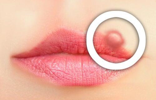 Come prevenire l'herpes labiale