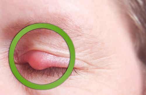 10 rimedi naturali per curare l'orzaiolo