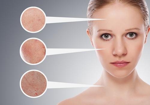 Oltre a pulire la pelle del viso, il succo di limone è ottimo anche per le mani e la pelle grassa.