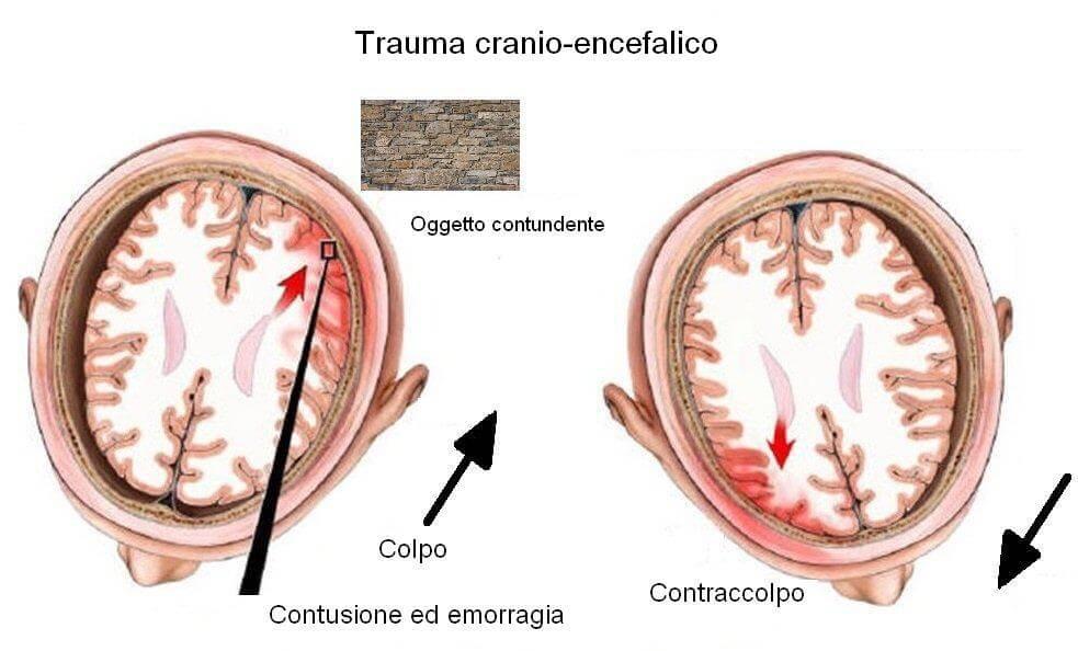 (Foto: www.cirugianeurologica.com.mx)