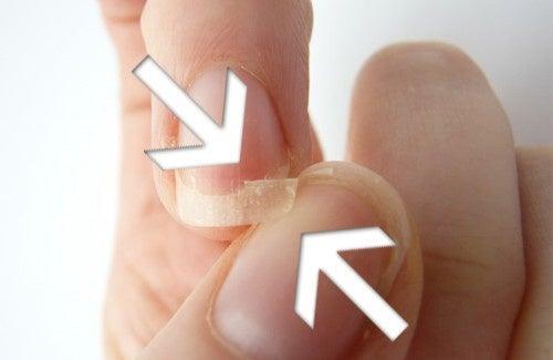 Unghie fragili: cause e rimedi da preparare in casa