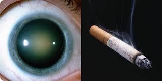 Fumo e cataratta