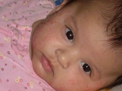 Bambina con eczema in viso