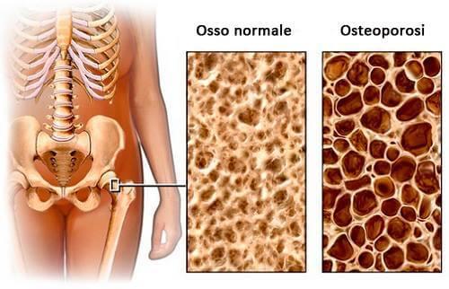 Dieta per evitare l'osteoporosi