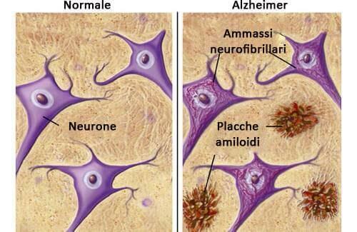 Alimenti che ci proteggono dall'Alzheimer