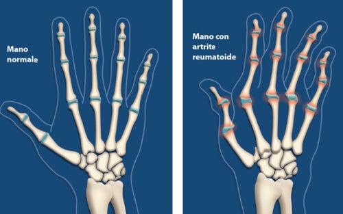 Artrite: 6 modi per rallentarla