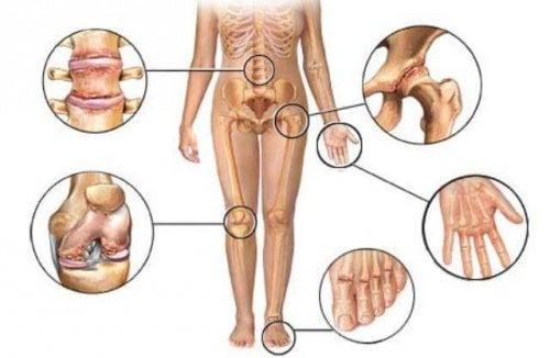 grafico zone colpite dall'artrite