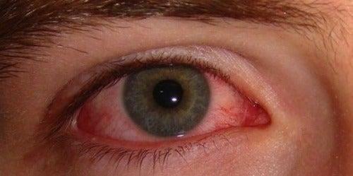 Occhi arrossati: cause e qualche semplice rimedio