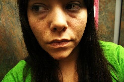 donna giovane con rughe precoci