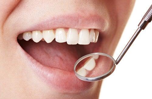 5 efficaci rimedi contro la placca dentale