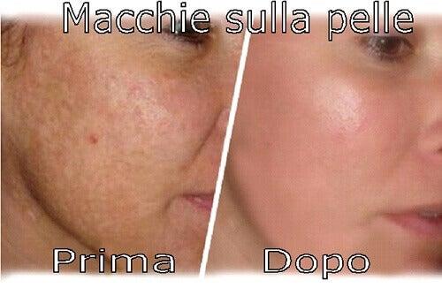 eliminare le macchie della pelle