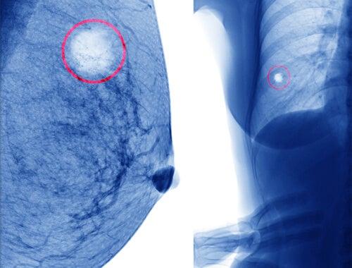 Radiografia cisti al seno