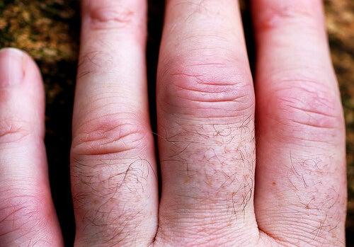 trattare l'artrite mani nocche