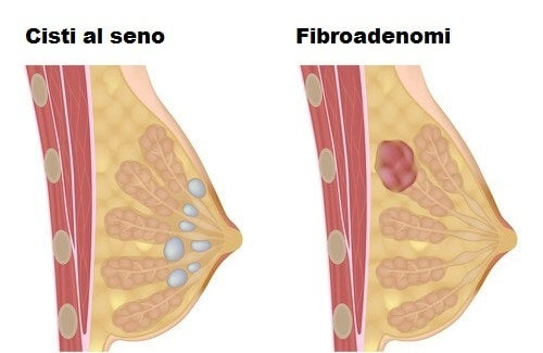 Come evitare le cisti al seno