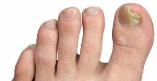 Come prevenire i funghi alle unghie dei piedi