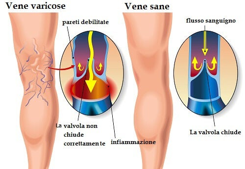 Esofago di trattamento varicosity