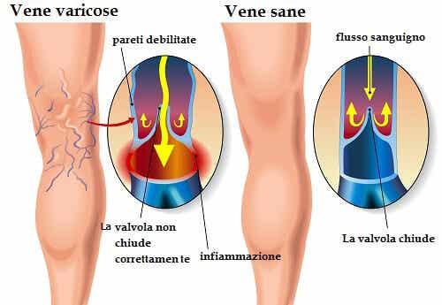 10 rimedi per le vene varicose a base di erbe