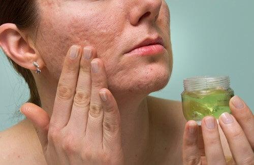 Staphylococcus doro nota sulla faccia e il dorso