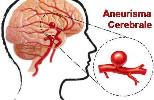 Riconoscere e prevenire l'aneurisma cerebrale