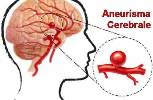 Aneurisma cerebrale: riconoscerlo e prevenirlo
