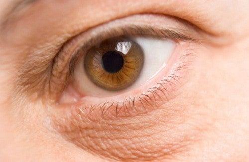 Schiarire o eliminare le occhiaie: come fare?