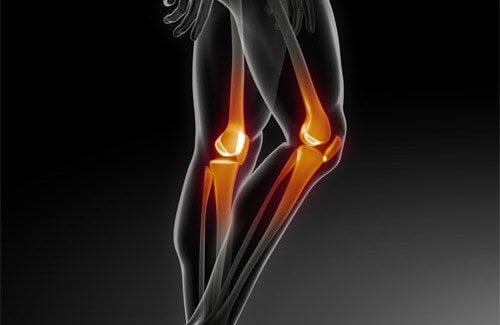 Come prevenire problemi ossei