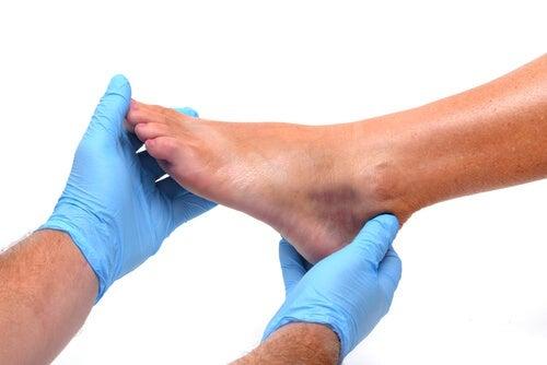 piedi gonfi sintomo di malattia renale