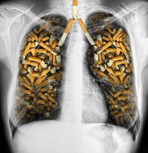 A che il termine di gravidanza smettere di fumare