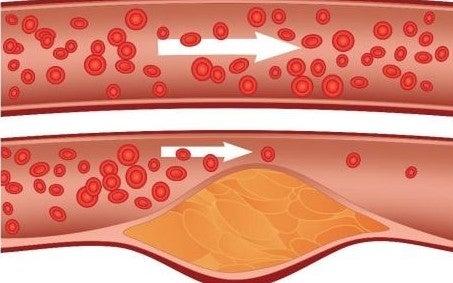 ridurre il colesterolo è importante per la salute