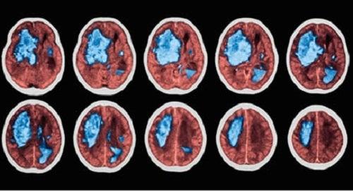 Come prevenire un'emorragia cerebrale