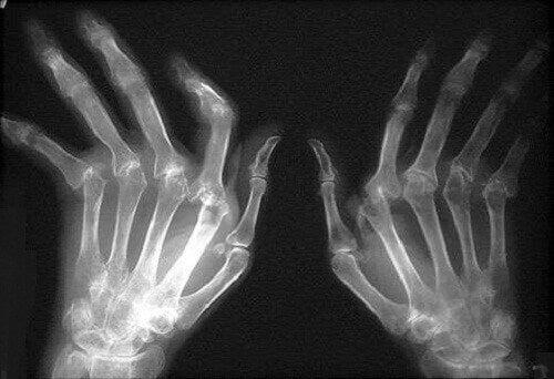 Il consumo insufficiente di acqua può provocare artrite
