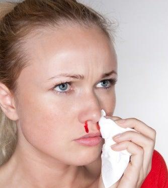Donna che perde sangue dal naso