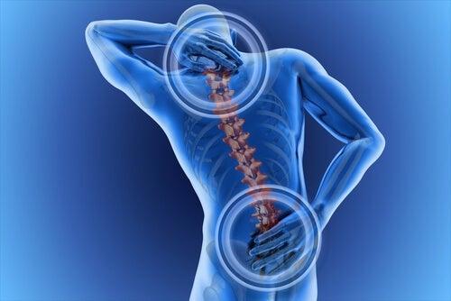 La zona in cui si avverte il dolore indica il punto in cui si trova l'ernia
