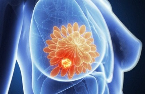 seno fibrocistico