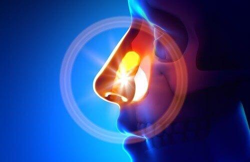 Come trattare la sinusite in modo naturale