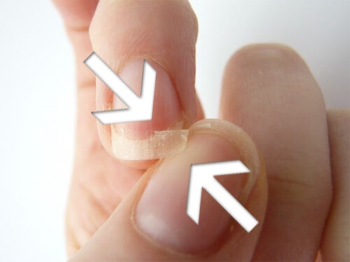 unghie spezzate