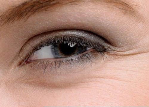 Togliere posti di pigmentary su un azoto di faccia