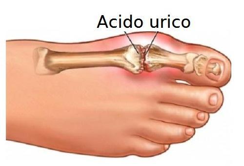 Acido-urico