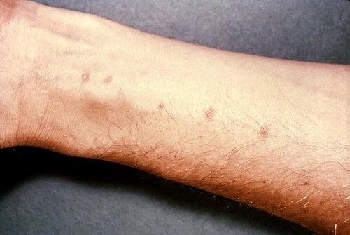Dermatite-allergica-da-contatto