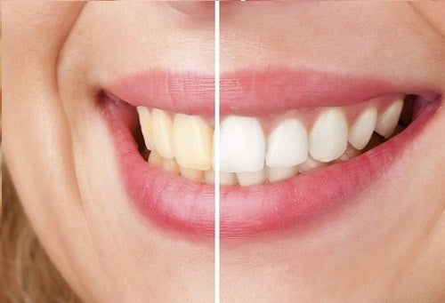 Consigli per sbiancare i denti in modo naturale