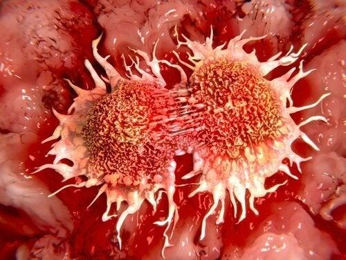 Sviluppare il cancro: ecco gli alimenti da evitare